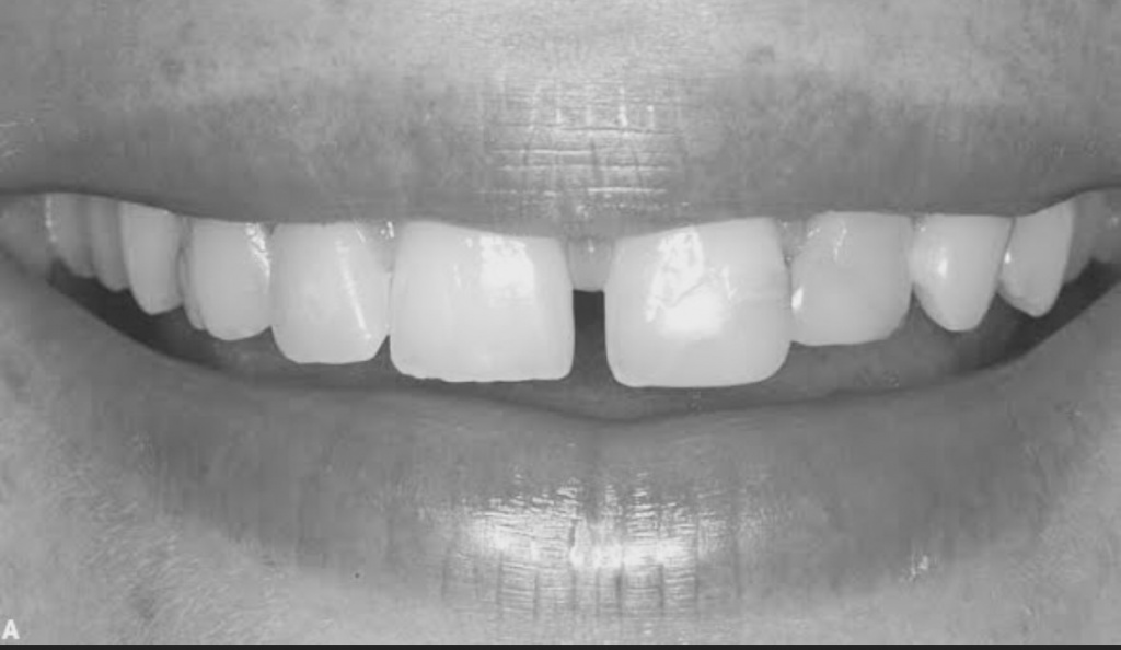 diastema interincisal